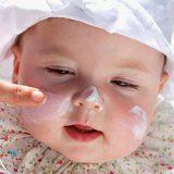 Arsurile solare la copii si bebelusi