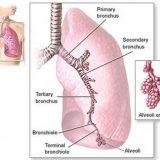 Infectiile cu streptococcus pneumoniae - pneumococul