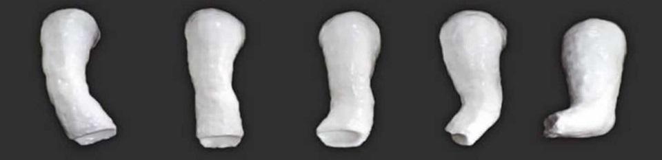 Metoda Ponseti pentru piciorul varus equin