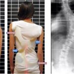Scolioza idiopatica la copil si adolescent